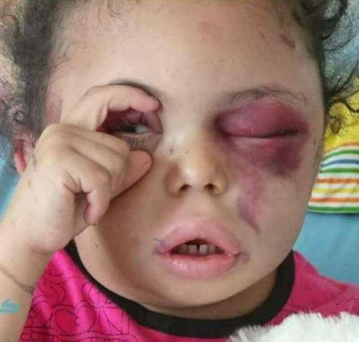 Buthaina, 4 ans, symbole de la guerre civile au Yémen