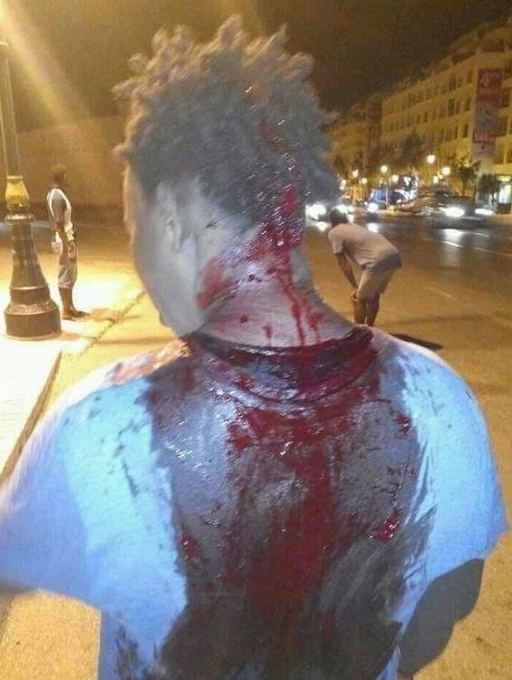 Maroc: Un étudiant violemment agressé