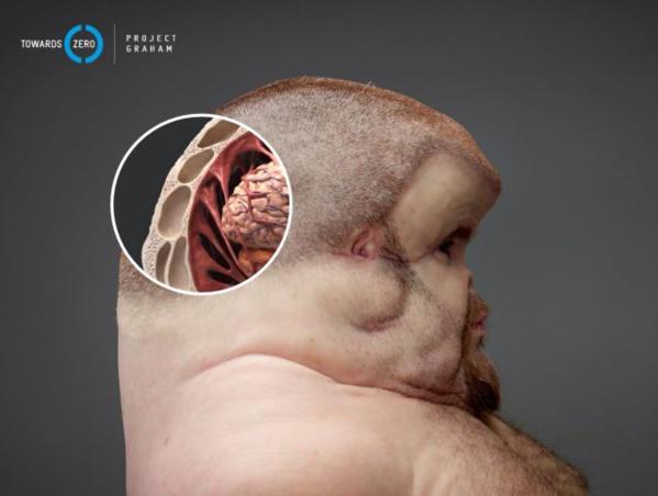Voici Graham, l'humain (immonde) conçu pour survivre à un accident de la route