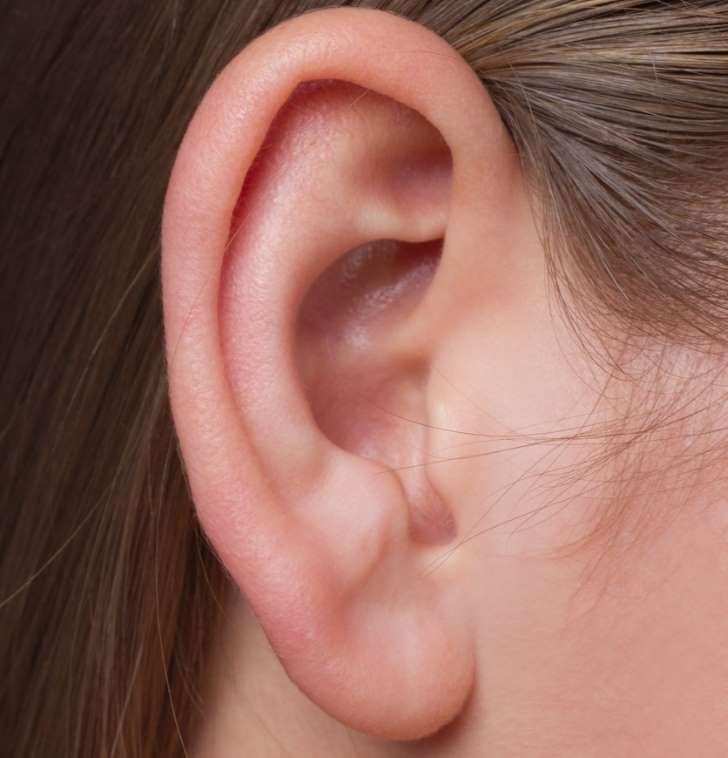 AVC : cette marque sur votre lobe d'oreille indique que vous êtes à risque