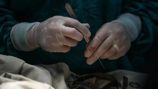 Un chef de cartel assassiné lors d'une opération pour changer de visage