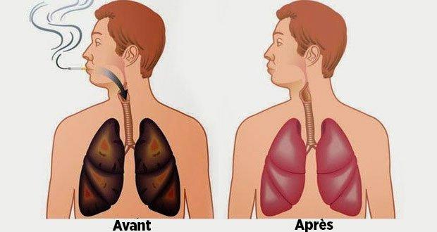 Ces aliments nettoient vos poumons de la nicotine et des goudrons