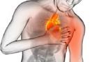 Danger! Cette boisson augmente le risque d'AVC et de crise cardiaque
