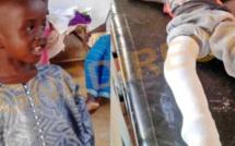 Sa jambe amputée après un accident routier, l'enfant Bécaye Cissé est décédé hier: ses parents dénoncent une bourde médicale