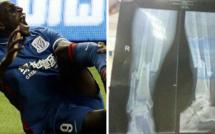 La radio de la jambe cassée de Demba Ba   /   Horrible...Horrible...Horrible...